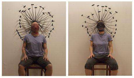 Foto: Persona seduta con faccia fasciata.